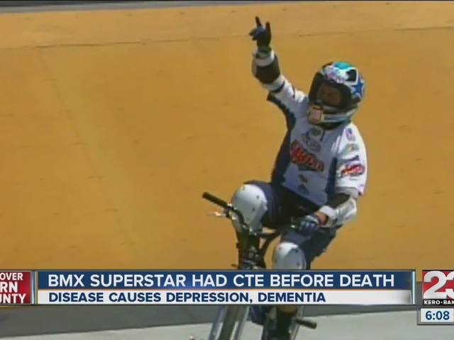 CTE discovered in brain of former BMX rider