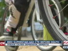 CTE not a major concern for local BMX racers