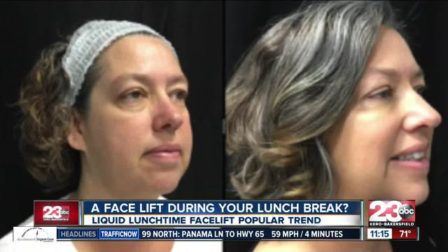 Liquid lunchtime facelift trend