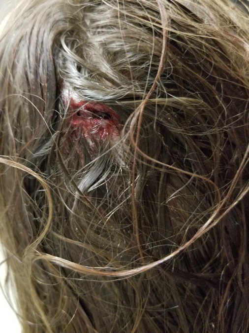 11 Year Old Girl Suffered Concussion Bleeding Head After