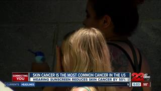 Summer skin safety with sunscreen